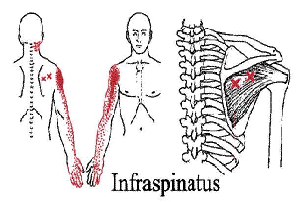 infras_tp