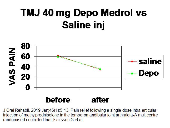 tmj_steroid_inj