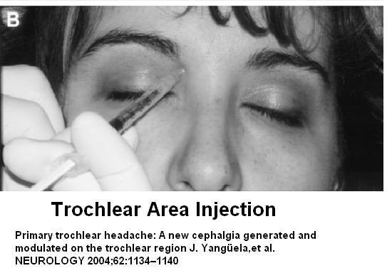 trochlear inject1